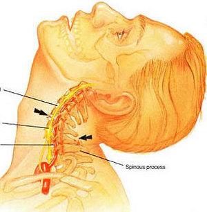 Мазь от остеохондроза шейного отзывы