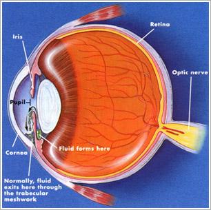 глаукома симптомы фото