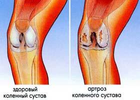 артроз артрит разница фото