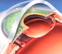 замена хрусталика катаракта фото